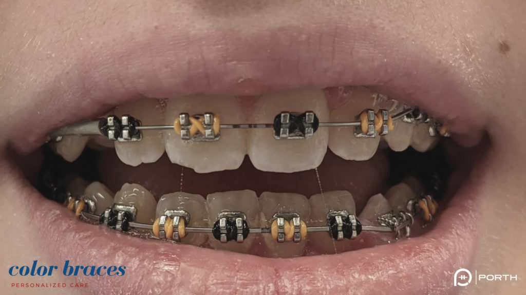 Colored Braces Offer Even More Customization Orthodontic Options 2