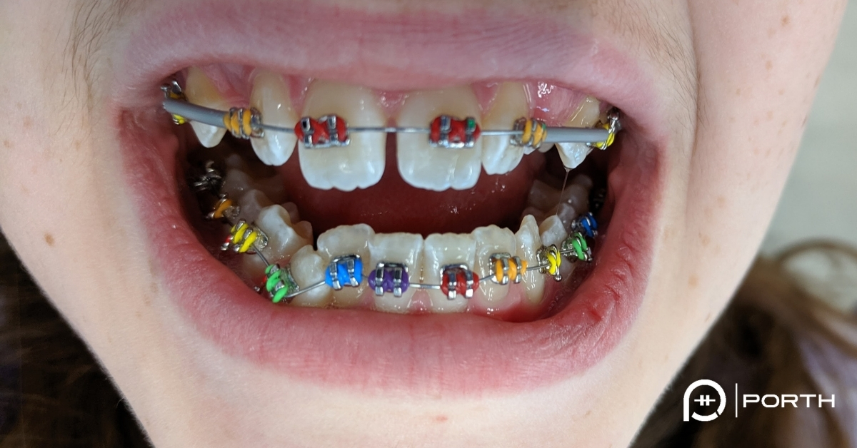 "Featured image for ""Colored Braces Offer Even More Customization Orthodontic Options"""