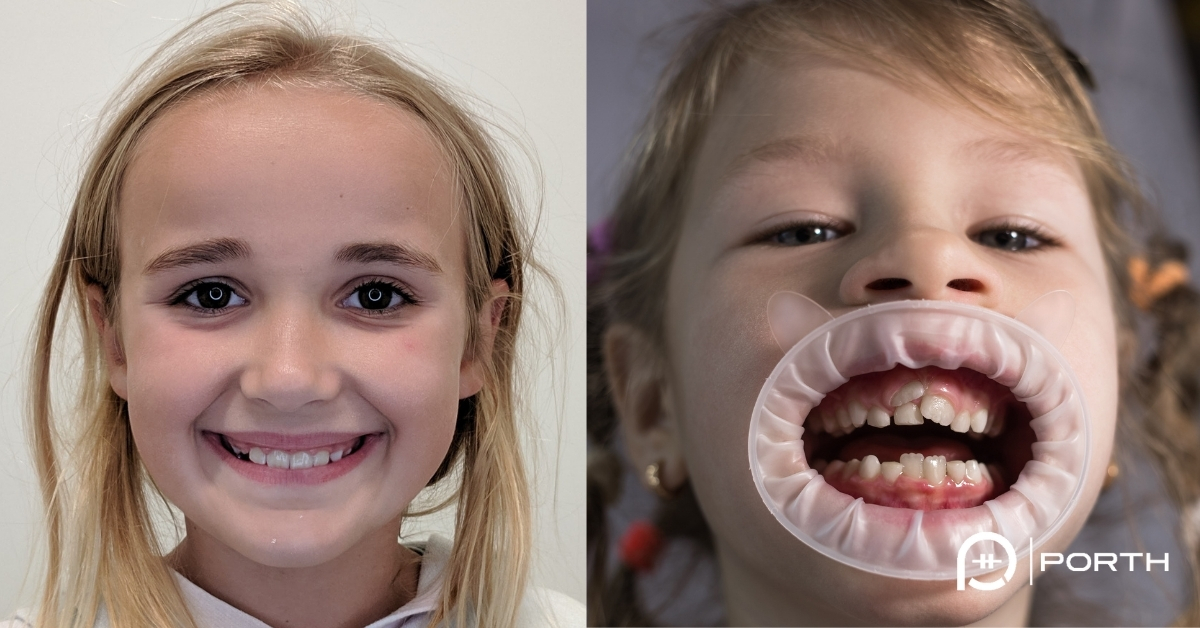 "Featured image for ""Are braces important for kids?"""