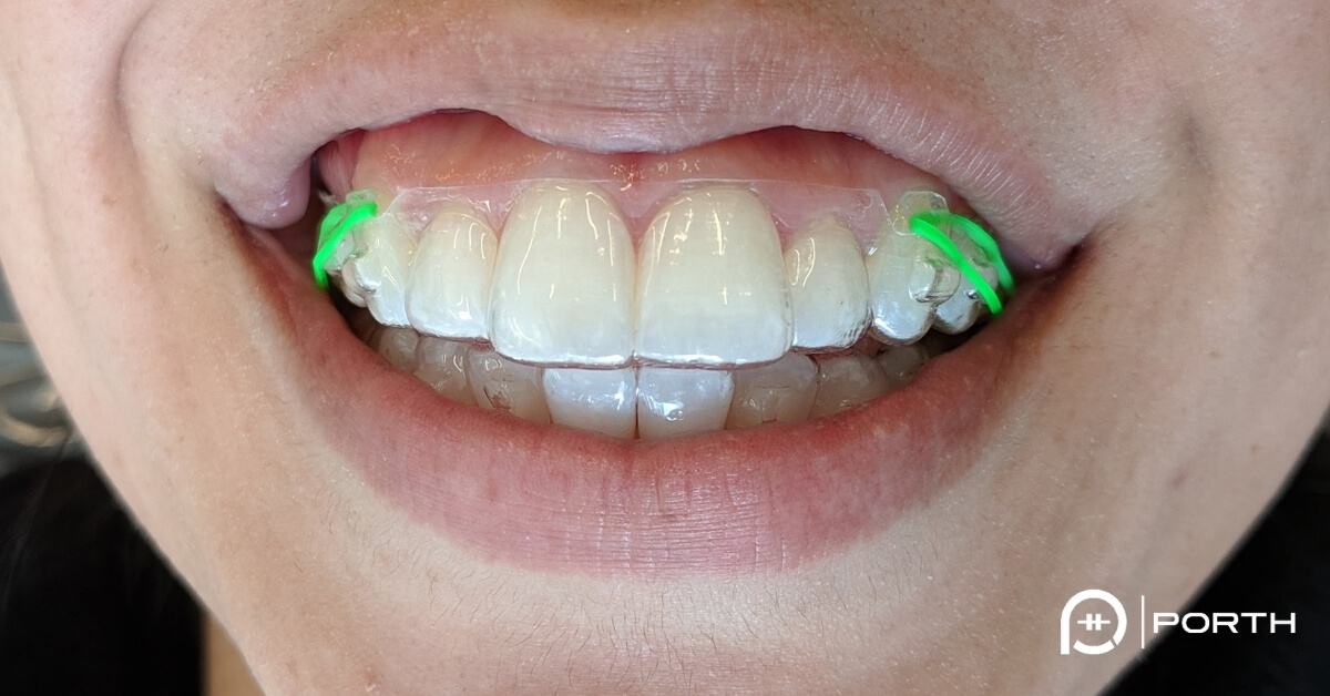 "Featured image for ""Elastics on Invisalign or Clear Aligners"""